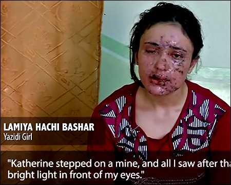 Kurdish-Yazidi-woman-disfigured-by-landmine-after-escaping-Islamic-State-May-2016-photo-voa-video